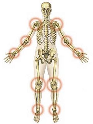 masszírozók ízületi fájdalmak kezelésére a könyökízület meniszkuszának károsodása