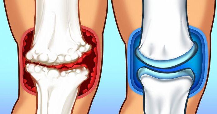 módok az ízületi fájdalmak ellen