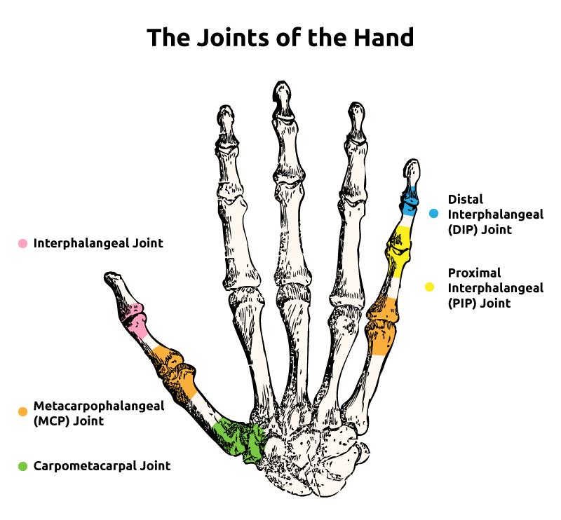 hogyan lehet kezelni a lábak és a karok beteg ízületeit