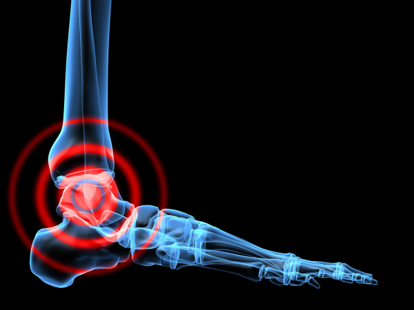mi a teendő, ha a láb medenceízülete fáj