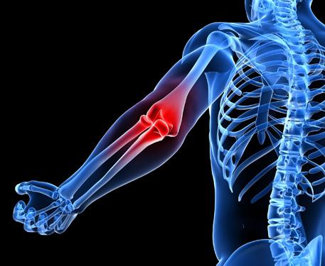 mit kell venni a könyökízület artrózisával