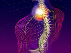 nyaki nyaki osteochondrozis géle