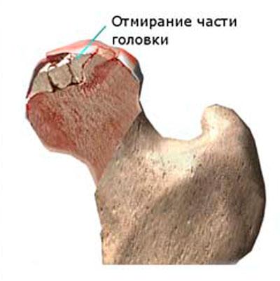 összeroppant és fáj a csípőízületre