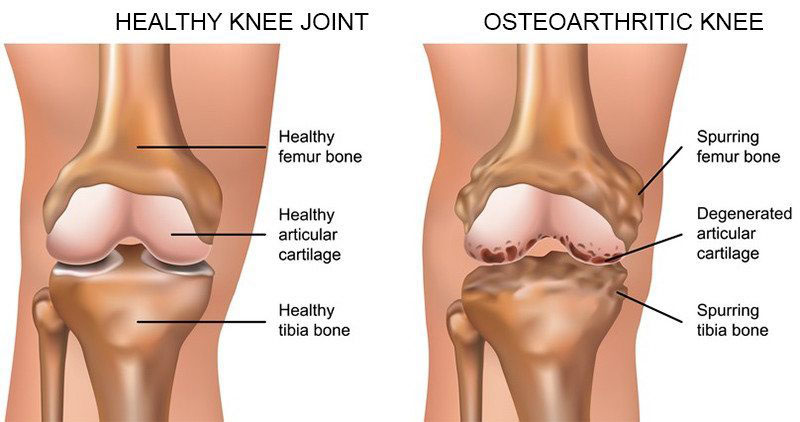 ortopédia térdízület kezelés