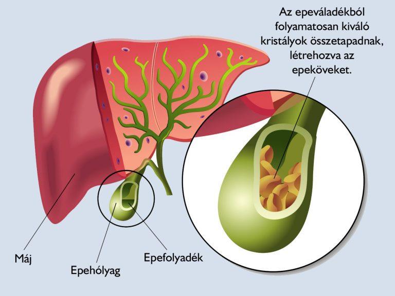 Az epebetegség jelei és gyógyítása - Egészségtér