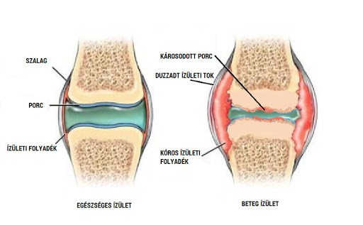 poszttraumatikus térd artrózis, hogyan kell kezelni