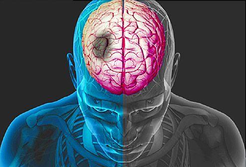 stroke ízületek kezelése