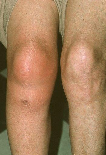 argo termékek ízületi fájdalmak kezelésére a térd merevsége fájdalom nélkül