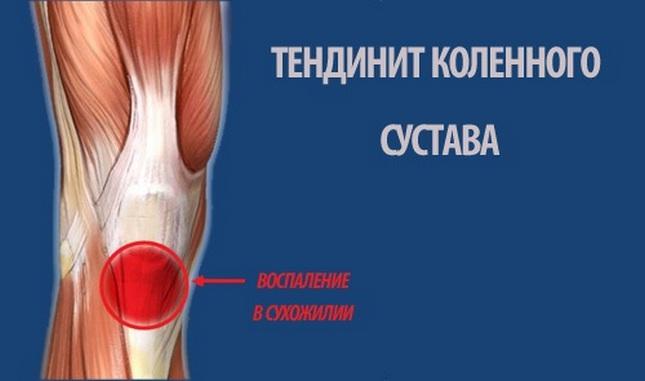 térdízület deformáló ízületi kezelése