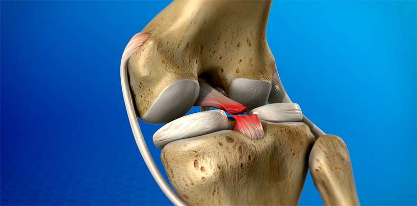 térdízület kezelésének tünetei krém a lábak ízületének fájdalmához