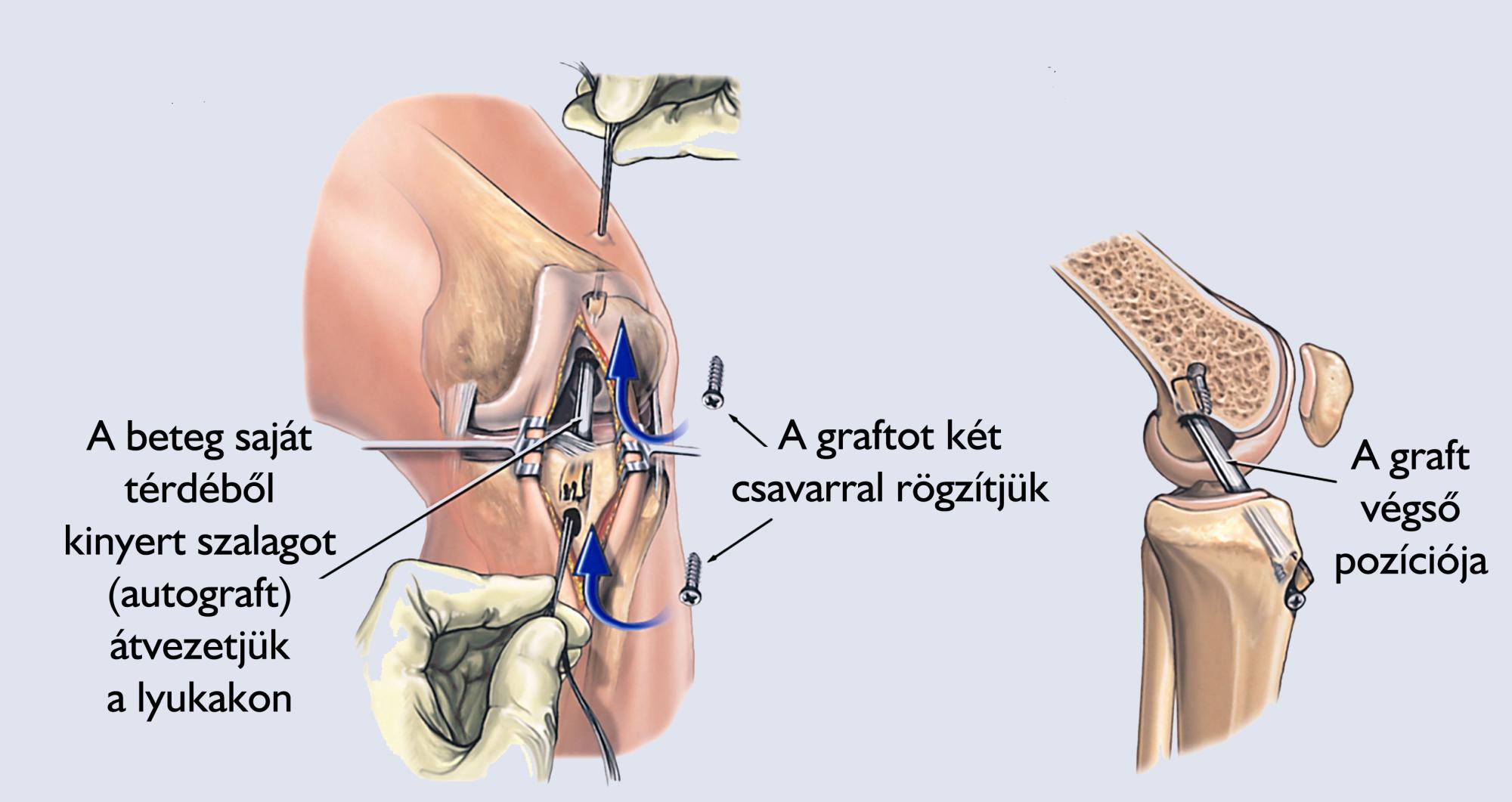 térdízület ízületi műtét ajánlások az artrózis kezelésére