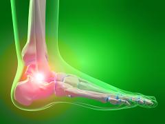 Ízületi és gerinc fájdalom okai - Súlypont Ízületklinika