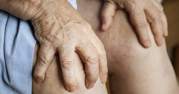 ízületi arthrosis
