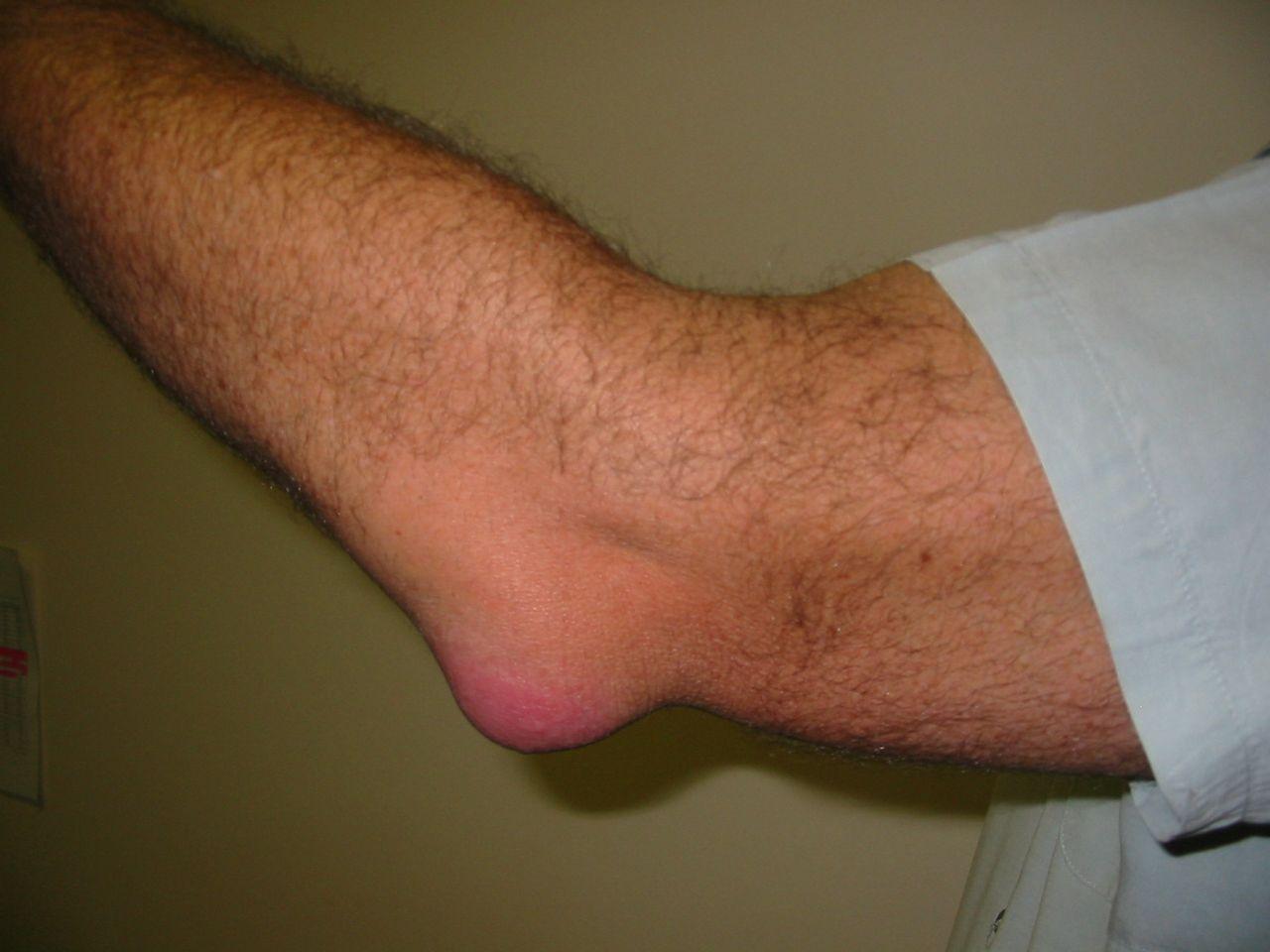 Könyökfájdalom gyakori okai - Dr. Zátrok Zsolt blog