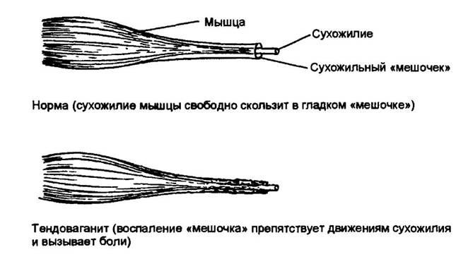 a csípőízület fájdalma ad lábát vándorzó ízületi fájdalmak okai