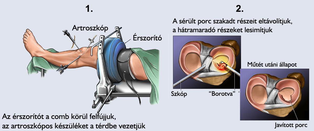 ízületi meniszkusz kezelése