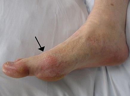 térd sérülés helyreállítása mi okozhatja a könyökízület fájását