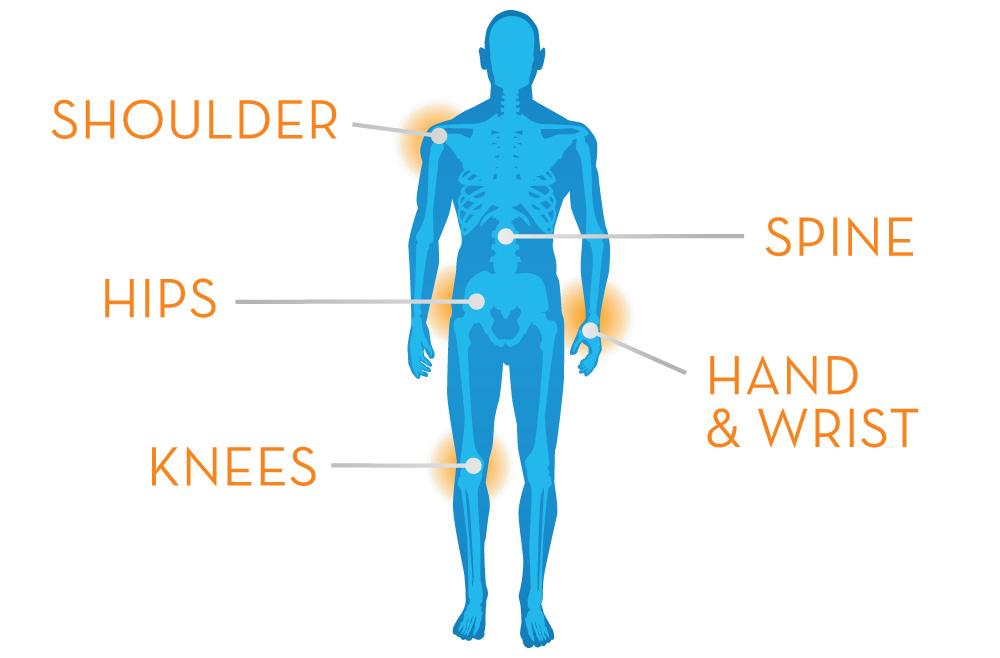 csuklóízületi fájdalmakkal térdízületek kezelésének szinovitisz