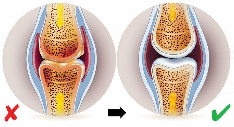 csípőízületi gyulladás kezelésére szolgáló gyógyszer