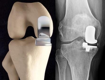 a jobb vállízület deformált artrózisa