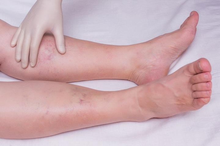 Ízületi gyulladás kezelése a bokaízület, az első tünetek, fotók