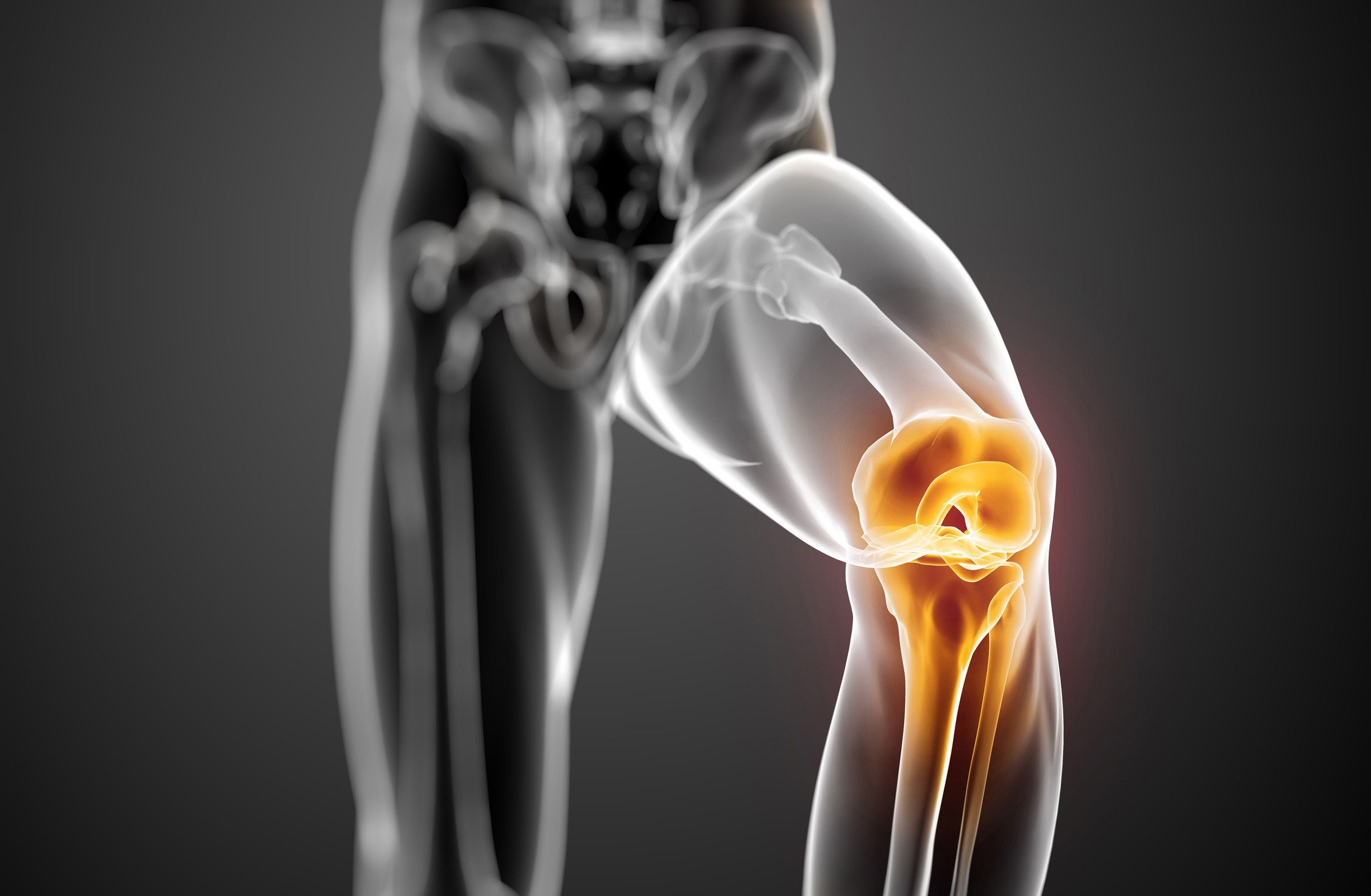 tenyér az ízületi fájdalom csontritkulás gyógyszere a