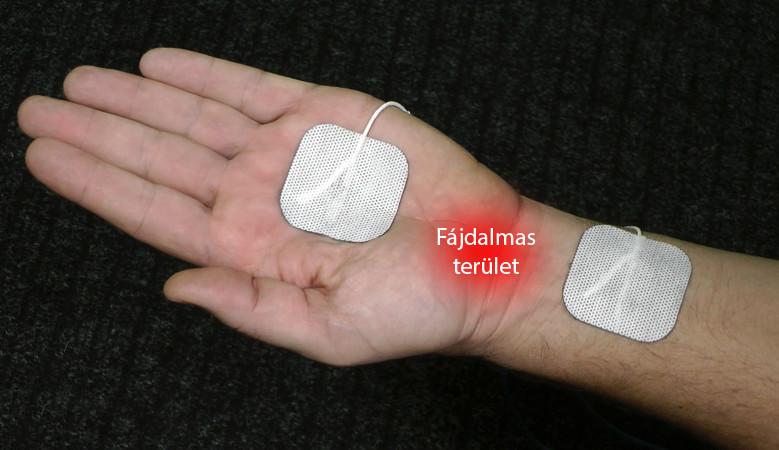 adler kezelés artrózis esetén
