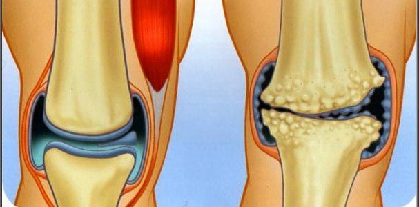 artróziskezelő készülékek áttekintése a csípőízületek sérülés után fájnak