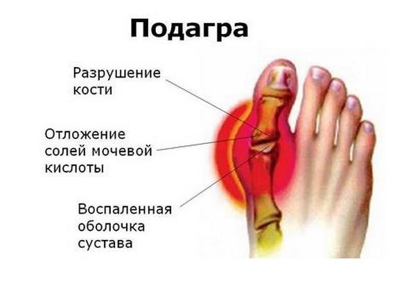 vágja meg az ujjfájdalmas ízületet