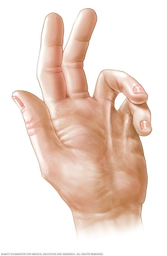az artrózist kezelik-e