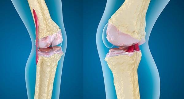 térdízületi tünetek és kezelési műtét ízületi fájdalom ischaemiás stroke után.