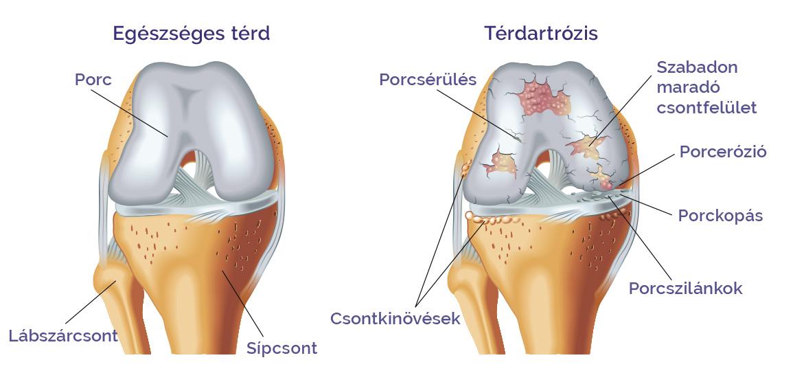 az összes ízület kezelése teraflex kezelés térd artrózis esetén
