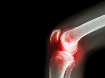 az artrózis klinikai kezelése iliotibial tract bursa