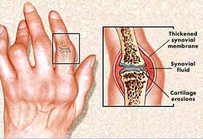 fájdalom a csípőízület bal oldalán