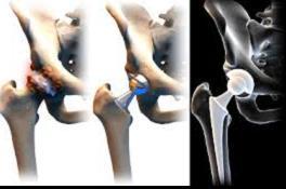 csípőízület kezelése coxarthrosis vagy arthrosis az ujjak artrózisa és kezelése