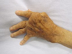 ízületi fájdalom, interfalangeális ízületek