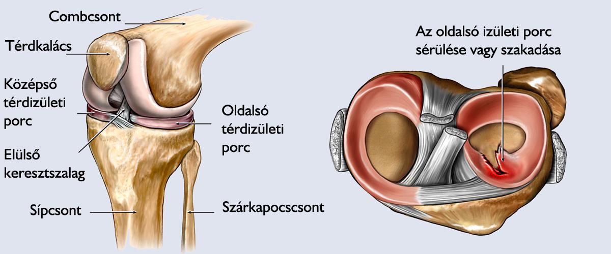 térdízület fájdalom műtét csípőfájás húzza