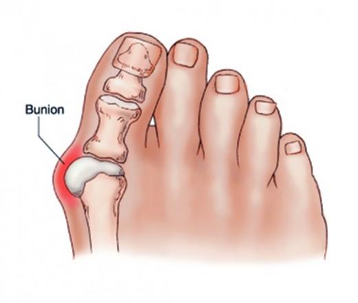 ízületi fájdalom a nagy lábujjon