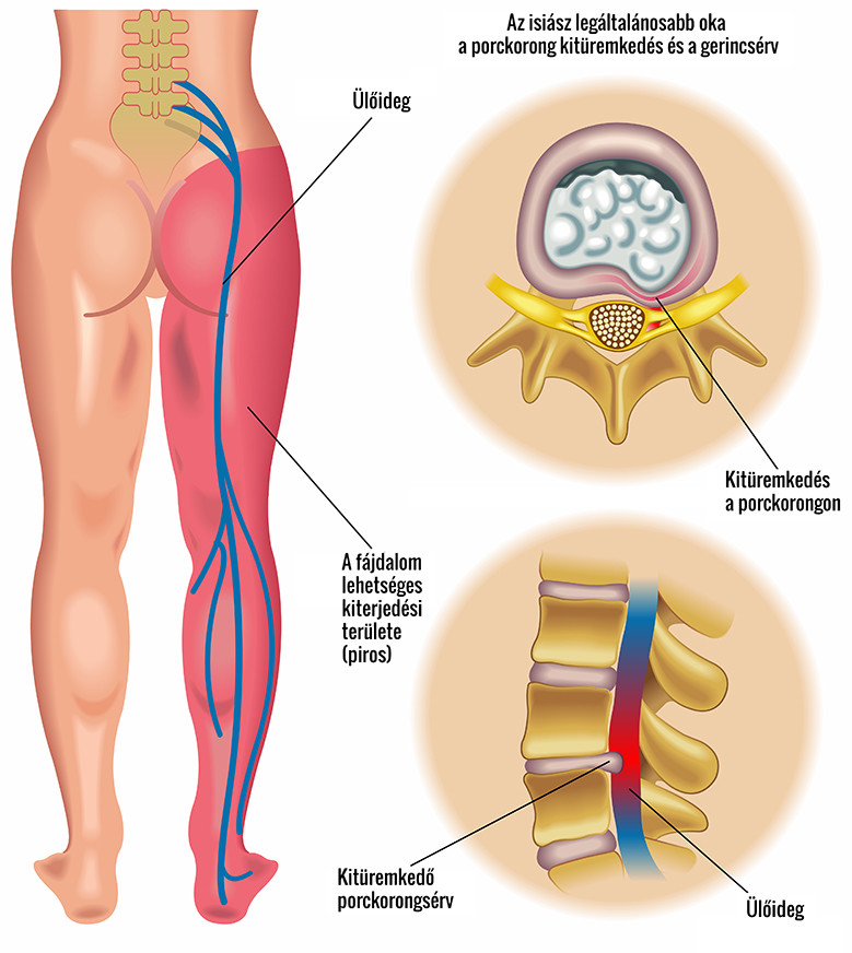 a térd artrózisának kezelése darsonvalval