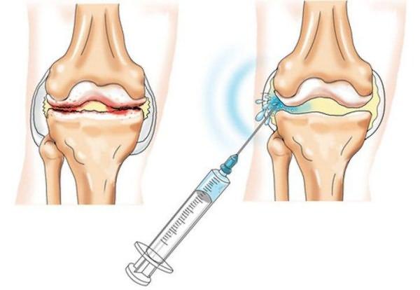 térd gonarthrosisának kezelése 2 evőkanál sarok utáni boka fájdalma