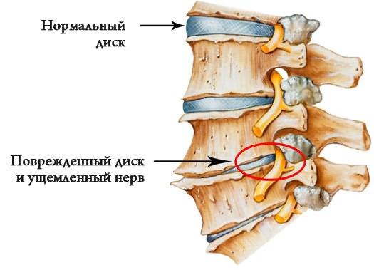 Éjszakai csípőfájdalom: ezek lehetnek az okai   felsomatraiskola.hu