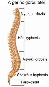 lumbalis lordosis gyógyítása mit kell tenni a lábízületek fájdalmától