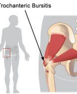 hogyan kell kezelni a csípő-bursitist