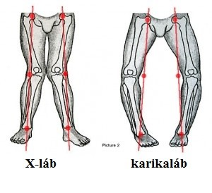 a láb ízületeinek deformáló artrózisa