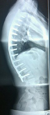 osteochondrosis nhs