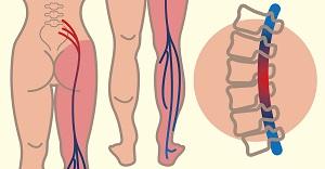 hogyan erősíthető meg a térd sérülés után
