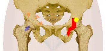 fájó és pattanó csípőízületek