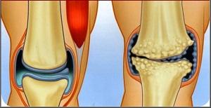 artrózis kezelés előrejelzése gyógyszerek a közös kezelésre