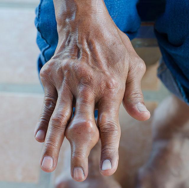 a kézízületek gyulladásának tünetei