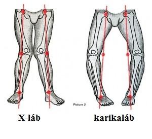 a láb ízületeinek deformáló artrózisa gerinc és ízületek kezelése magnitogorszkban